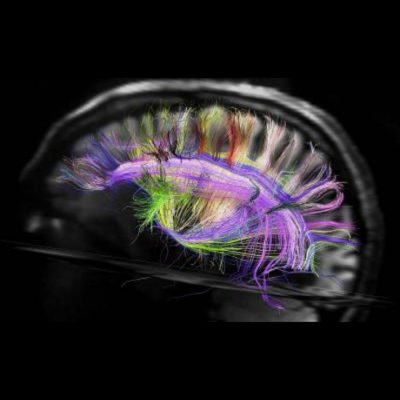 La Neuroimaging del domani, dalla Harvard University